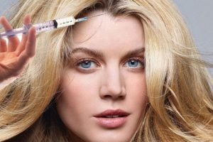 Botox Treatment for Scalp Sweating